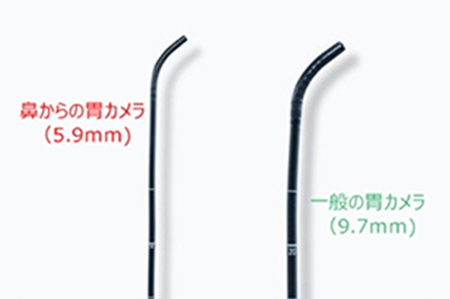 鼻からの胃カメラ(5.9mm)・一般の胃カメラ(9.7mm)